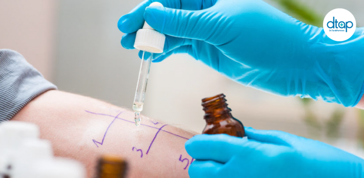 Skin-Prick-Test