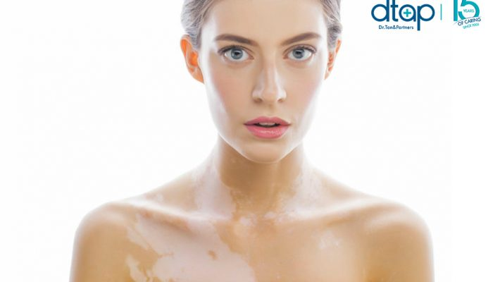 What Causes Vitiligo?