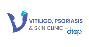 vitiligo-psoriasos-skin-clinic-by-DTAP-300×158-1